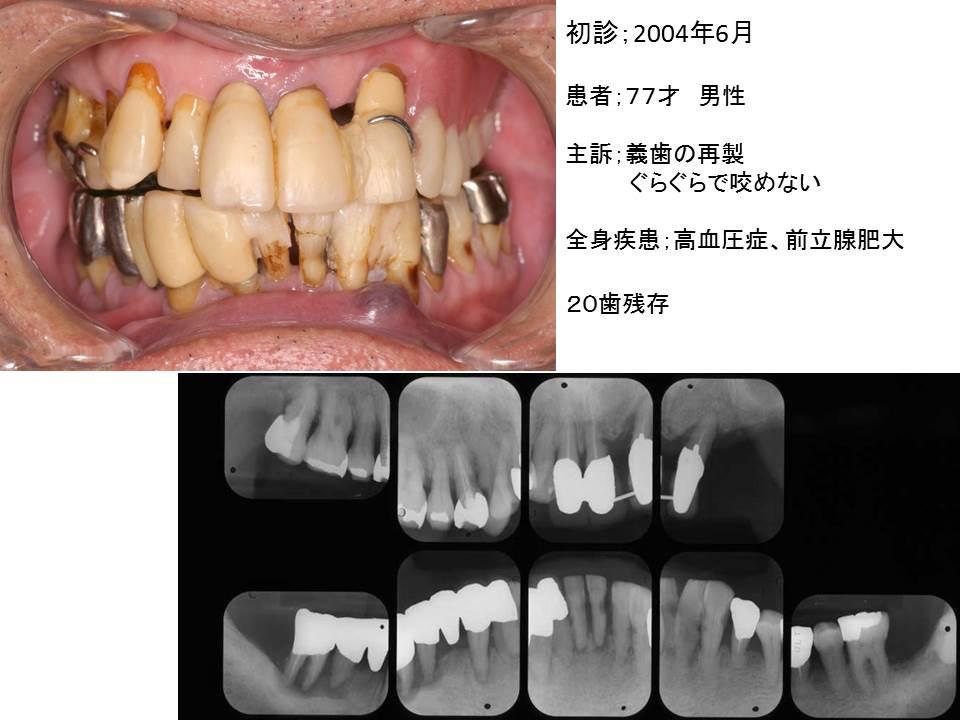 症例:義歯の再製