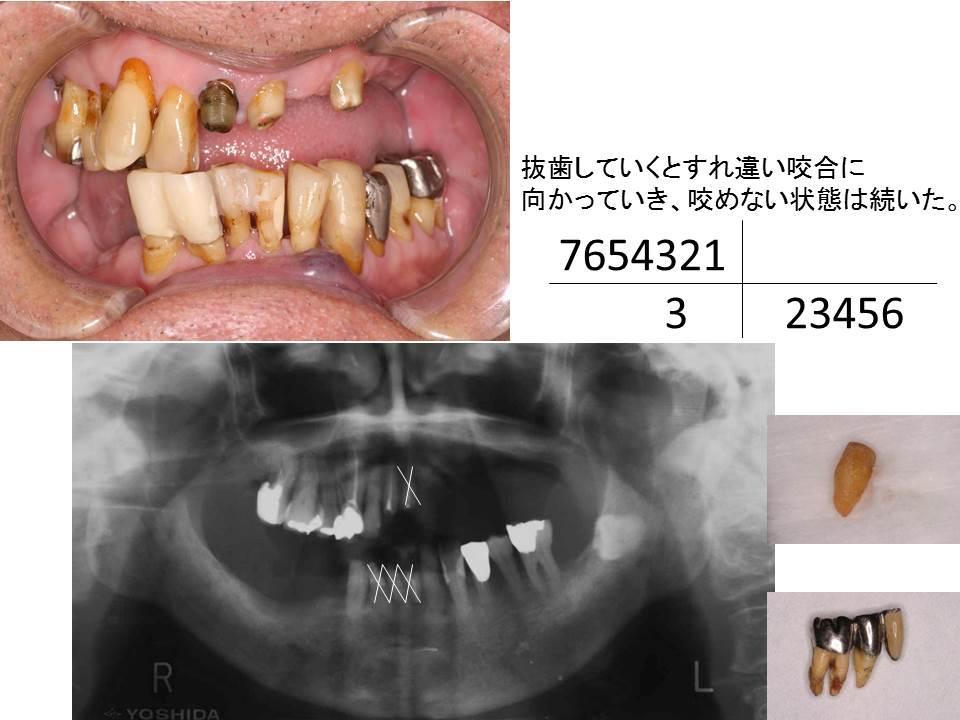 症例:抜歯していくとすれ違い咬合に 向かっていき、咬めない状態は続いた。