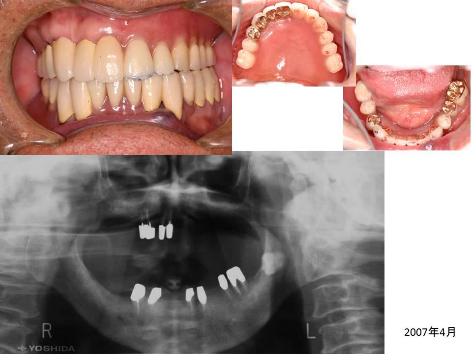 症例:義歯完成時